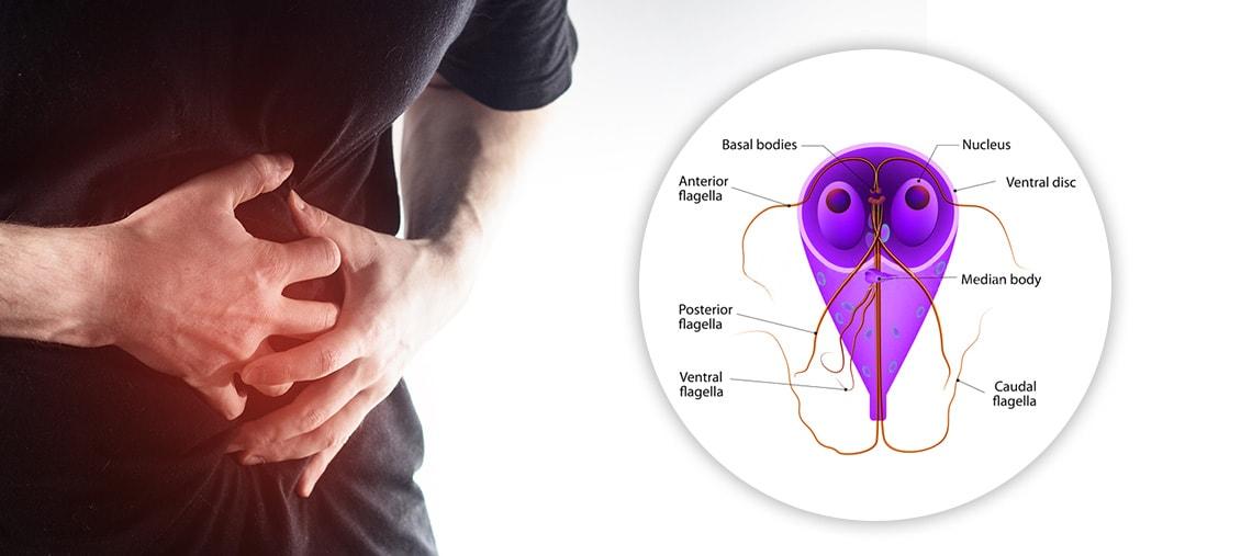 Infectia cu Giardia