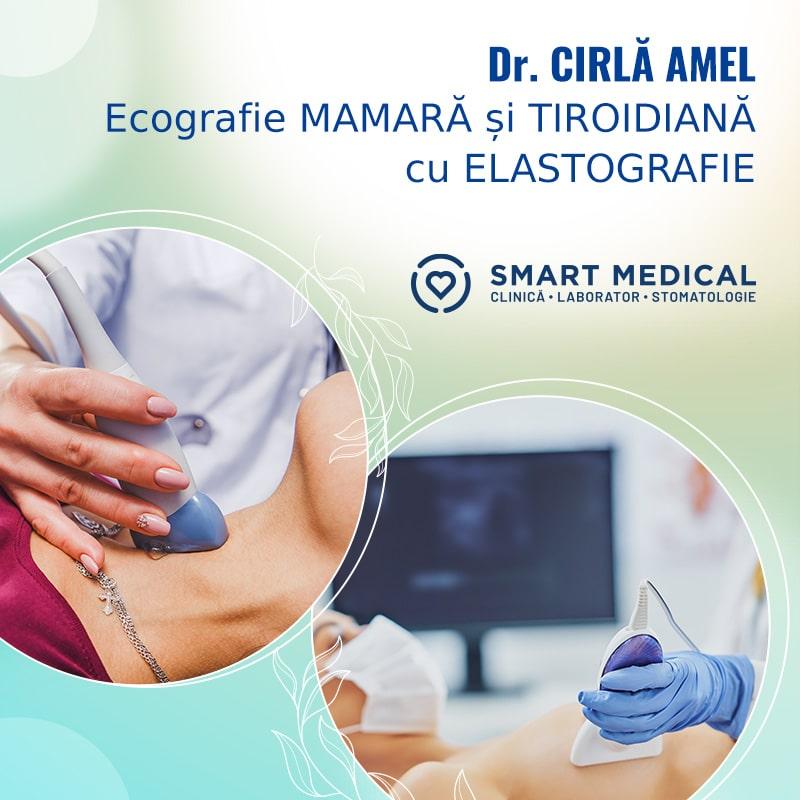 Ecografie cu elastografie - Smart Medical